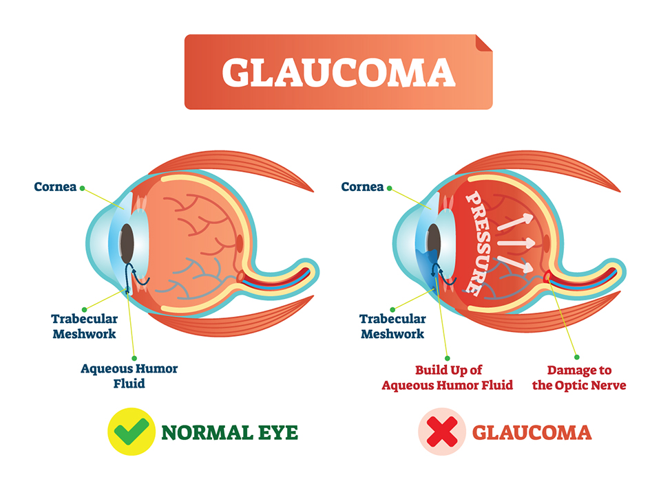 Glaucoma illness vector illustration. Cross section close-up comparison with normal and damaged eye. Scheme with cornea, trabecular meshwork, aqueous humor fluid, pressure and optic nerve damage.