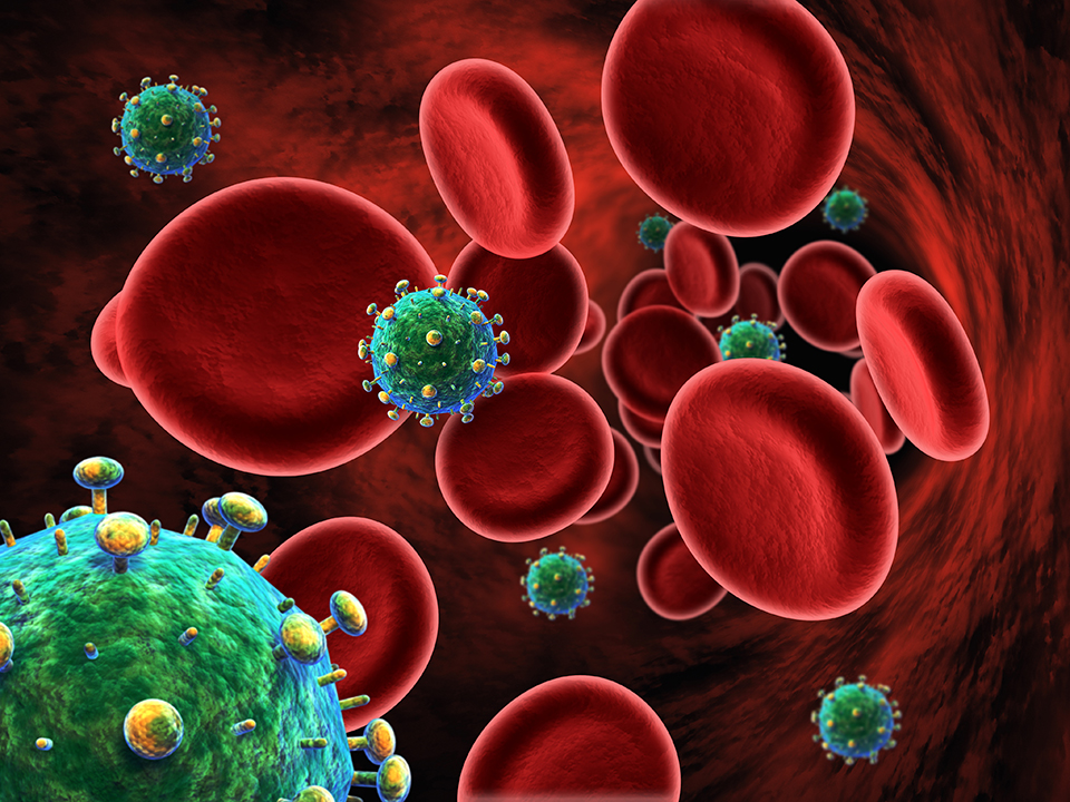 HIV cells in the bloodstream. AIDS.