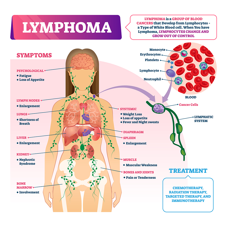 Lymphoma diagnosis illustration. Disease treatment and symptoms list. Closeup and isolated lymphatic system diagram.