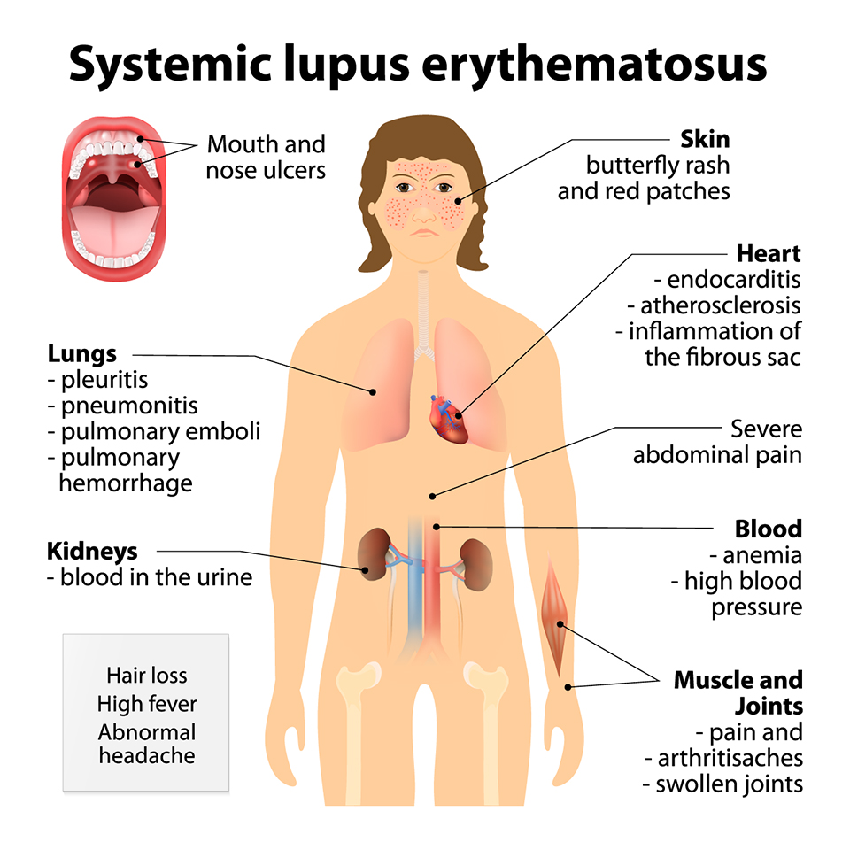 Systemic Lupus Erythematosus. Symptoms & Signs. Human silhouette with highlighted internal organs.