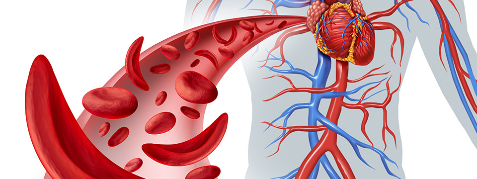 Illustration of sickle cell heart circulation as a disease with normal hemoglobin and abnormal hemoglobin in a human artery anatomy. Heart cardiovascular medical illustration concept in 3D.